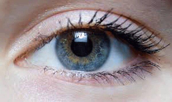 بروز نوعی بیماری چشمی بر اثر آلودگی هوا
