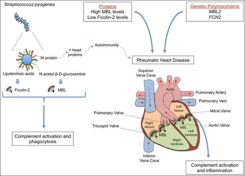 روماتیسم قلبی چیست و چه علائم و نشانه هایی دارد؟ شیوه تشخیص و درمان آن